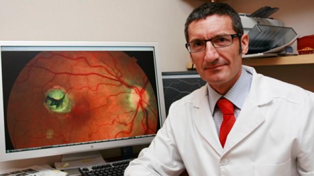 Redistribuir las dosis reduce el riesgo de rotura del epitelio en degeneración macular
