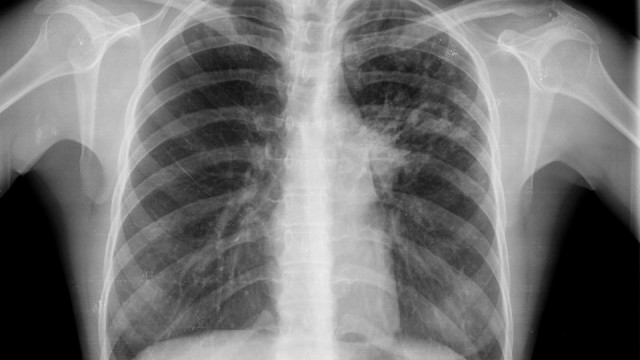 Especialización Universitaria en Imagen torácica en ciencias de la salud